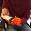 Amputee's New Hand is a Bionic NERF Gun