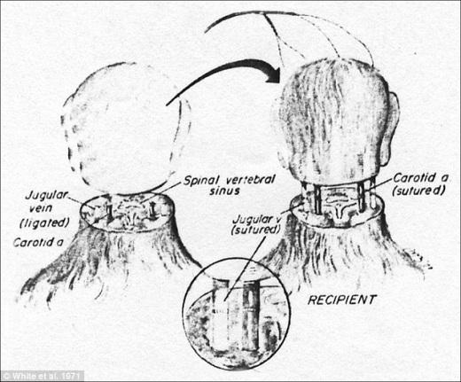 head transplant 2.jpg