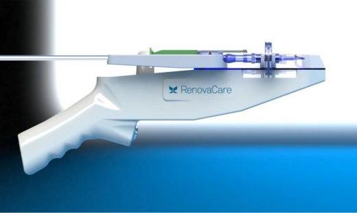 RenovaCare-CellMist-SkinGun-Stem-Cell-Burn-Treatment-1020x610.jpg