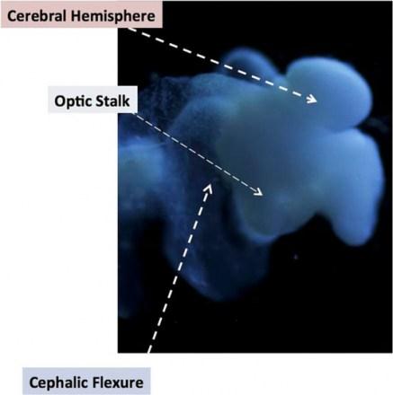 ohio-human-brain-537x541.jpg