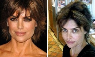 lisa-rinna-regrets-plastic-surgery-and-comes-clean_feat.jpg