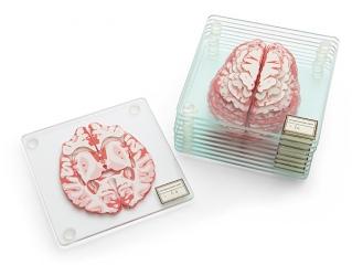 huir_brain_specimen_coasters.jpg