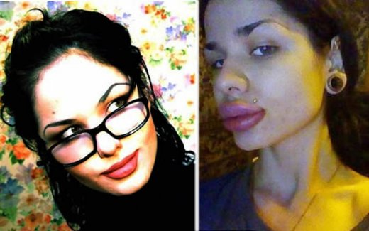kristina_biggest_lips_injections_4.jpg